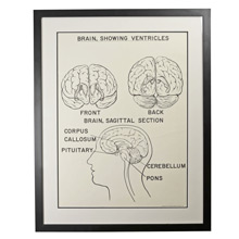 Framed Ventricles Anatomy Teaching Poster c1960s